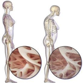Osteoporose: Die schleichende Gefahr